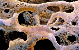 Linee Guida sulla gestione dell'Osteoporosi e delle Fratture da fragilità